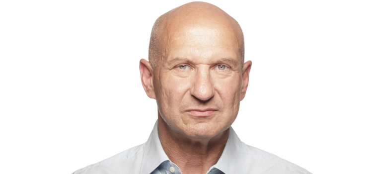 alopecia total