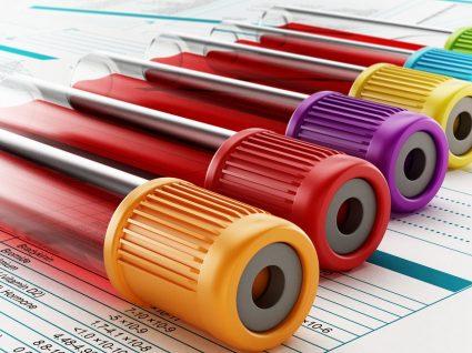 Bilirrubina: o exame sanguíneo pode detetar problemas hepáticos