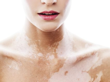 Vitiligo: o que precisa saber