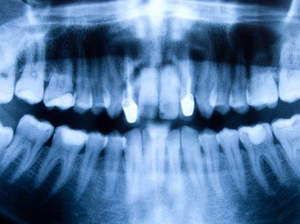 Periodontite: causas, sintomas, tratamento e prevenção