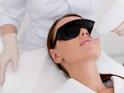 4 Tratamentos que vão atenuar as marcas da acne de vez