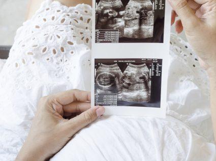 Conselhos úteis para a ajudar a engravidar rapidamente