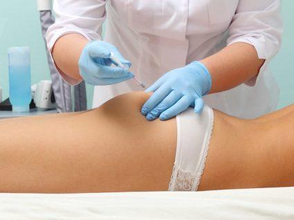 Tudo o que precisa de saber sobre mesoterapia