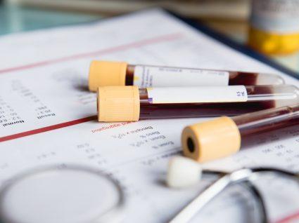 Exames de sangue em jejum: análises ao sangue