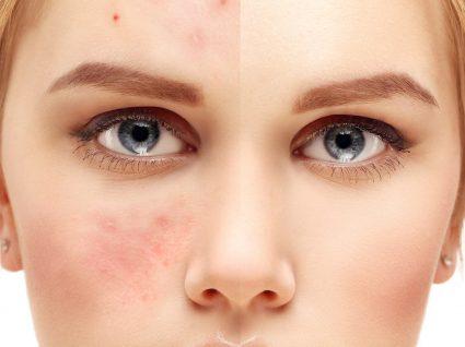 Rosácea: sinais, sintomas e tratamento