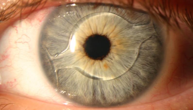 lente ocular interna