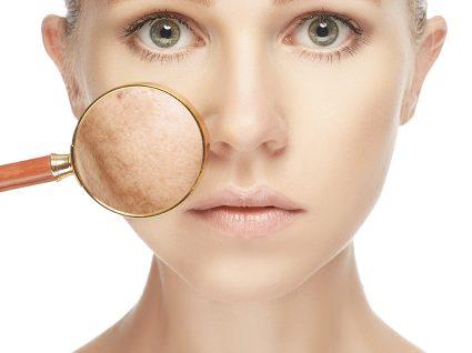 Manchas na pele: como diferenciar e tratar?