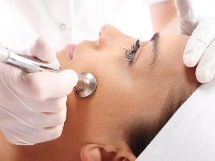 Benefícios da microdermoabrasão para a pele
