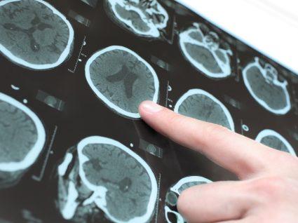 Doença de Parkinson: causas, sintomas e tratamento