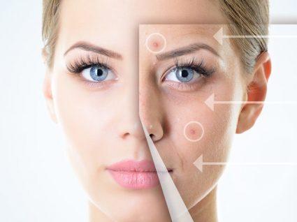 Tratamentos para a acne inovadores: acabe com este inestético problema