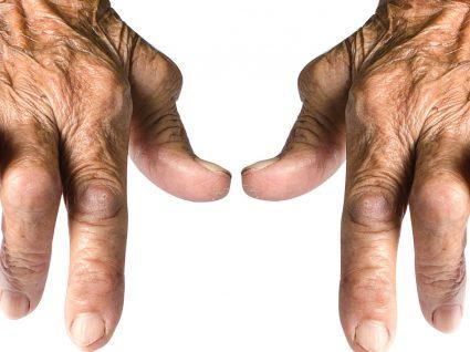 Artrite reumatoide: conheça melhor esta doença