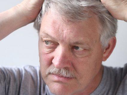 Dermatite seborreica: sintomas e tratamentos