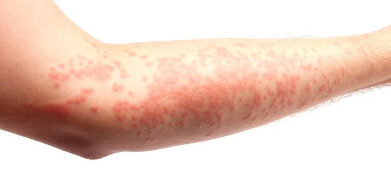 sintomas pitiriase rosea