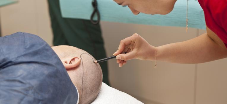 transplante capilar cirurgias