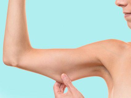 Os melhores tratamentos para combater a flacidez