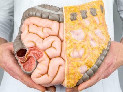 Cancro do cólon: a importância de um diagnóstico precoce