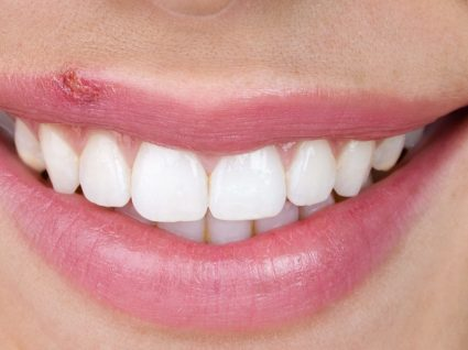 Herpes labial: o que é, como prevenir e curar