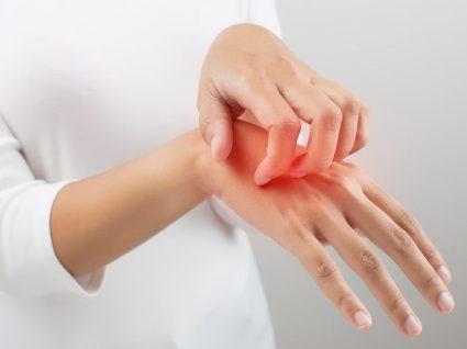 Dermatite: tudo o que deve saber sobre esta condição da pele