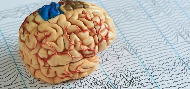 epilepsia refratária