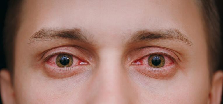 anafilaxia reacao alergica olhos