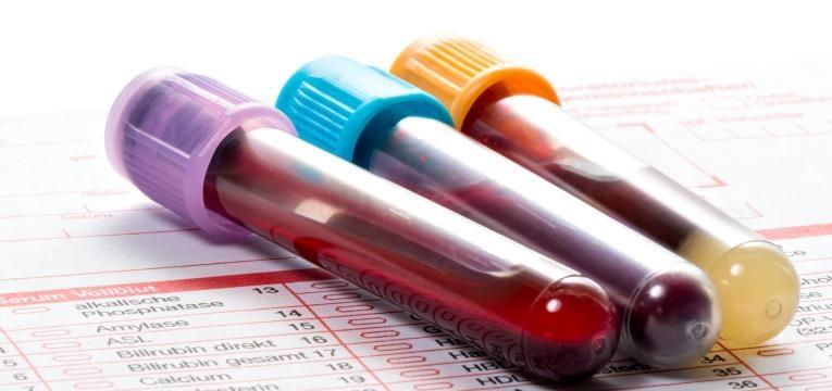 alergia e intolerancia e analise ao sangue