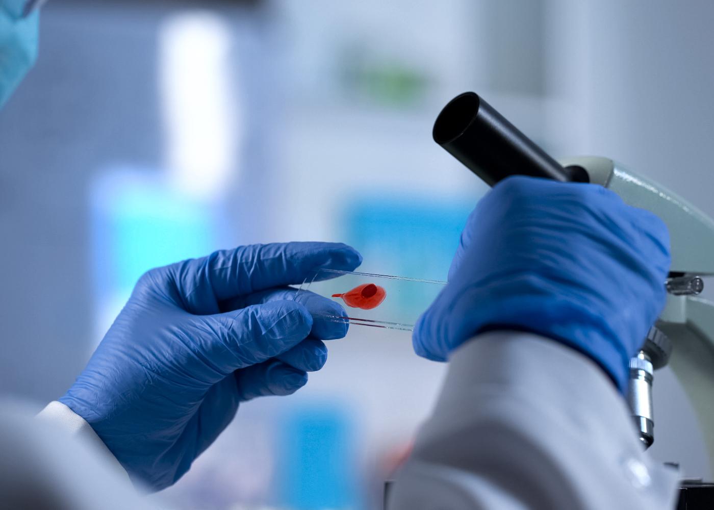 bolsa de investigacao cientifica em leucemia