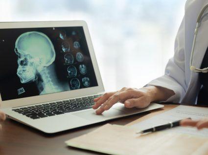 Embolia cerebral: o princípio do AVC