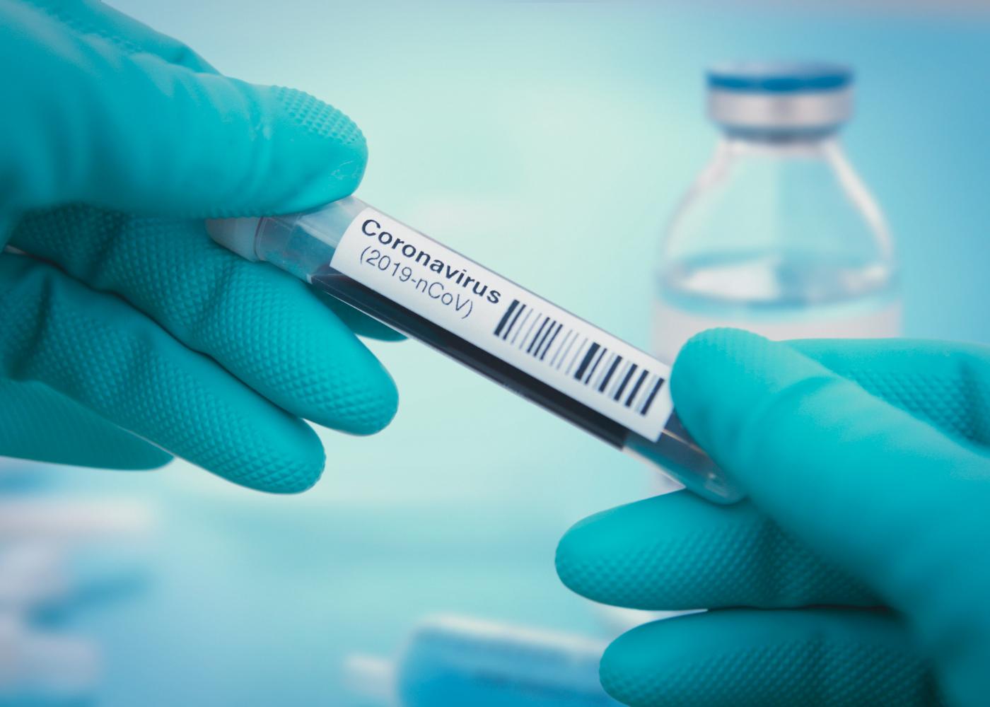 teste ao coronavírus 2019