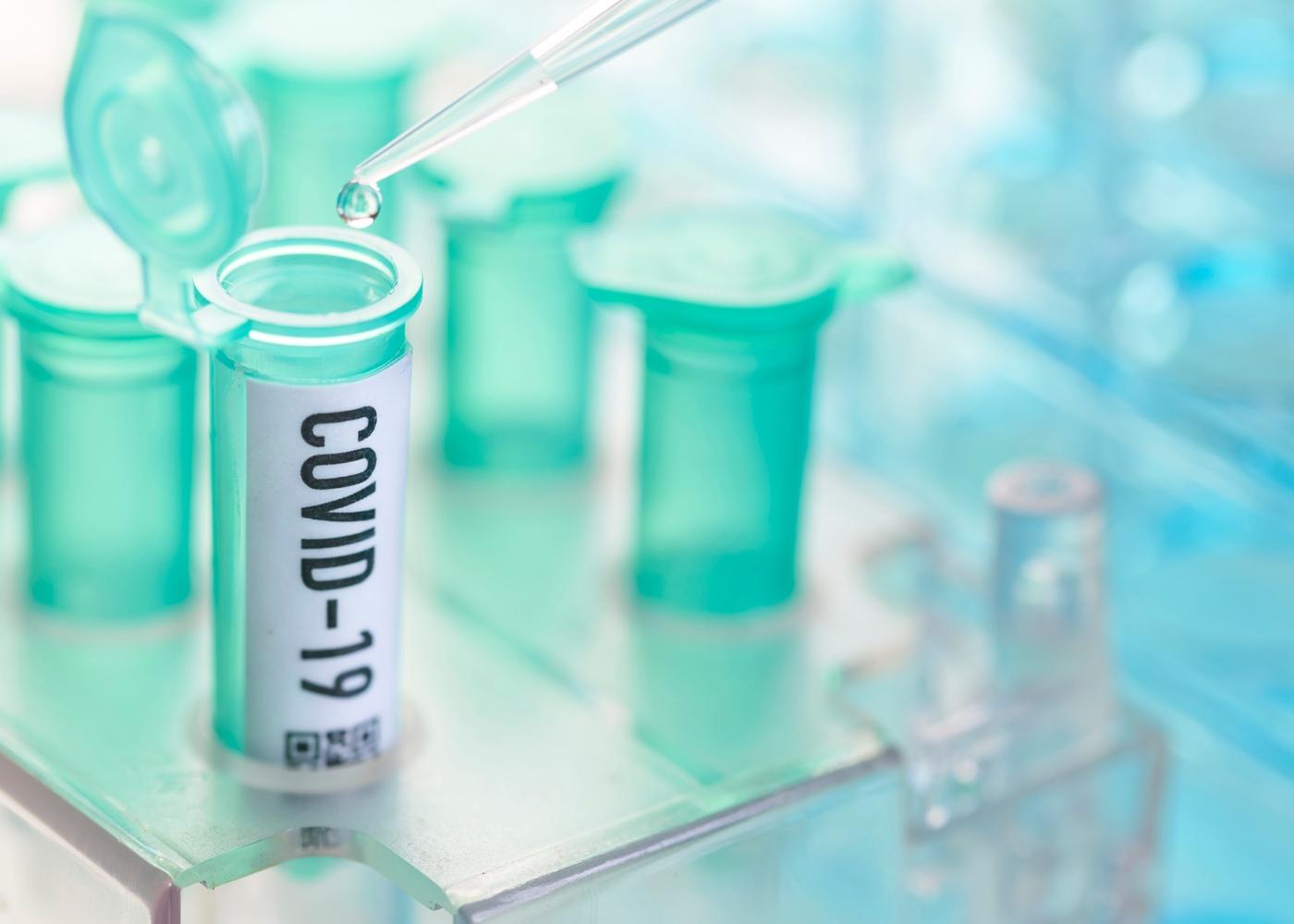 Animal responsável pelo Coronavírus: teste laboratorial ao Covid-19