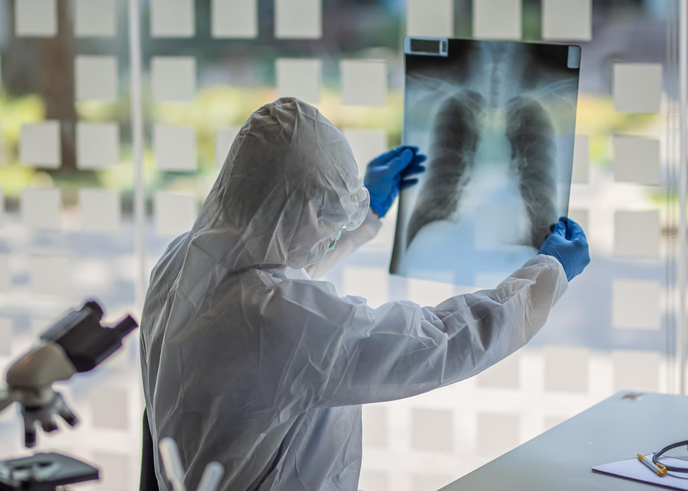 Profissional de saúde a analisar radiografia aos pulmões de doente com COVID-19