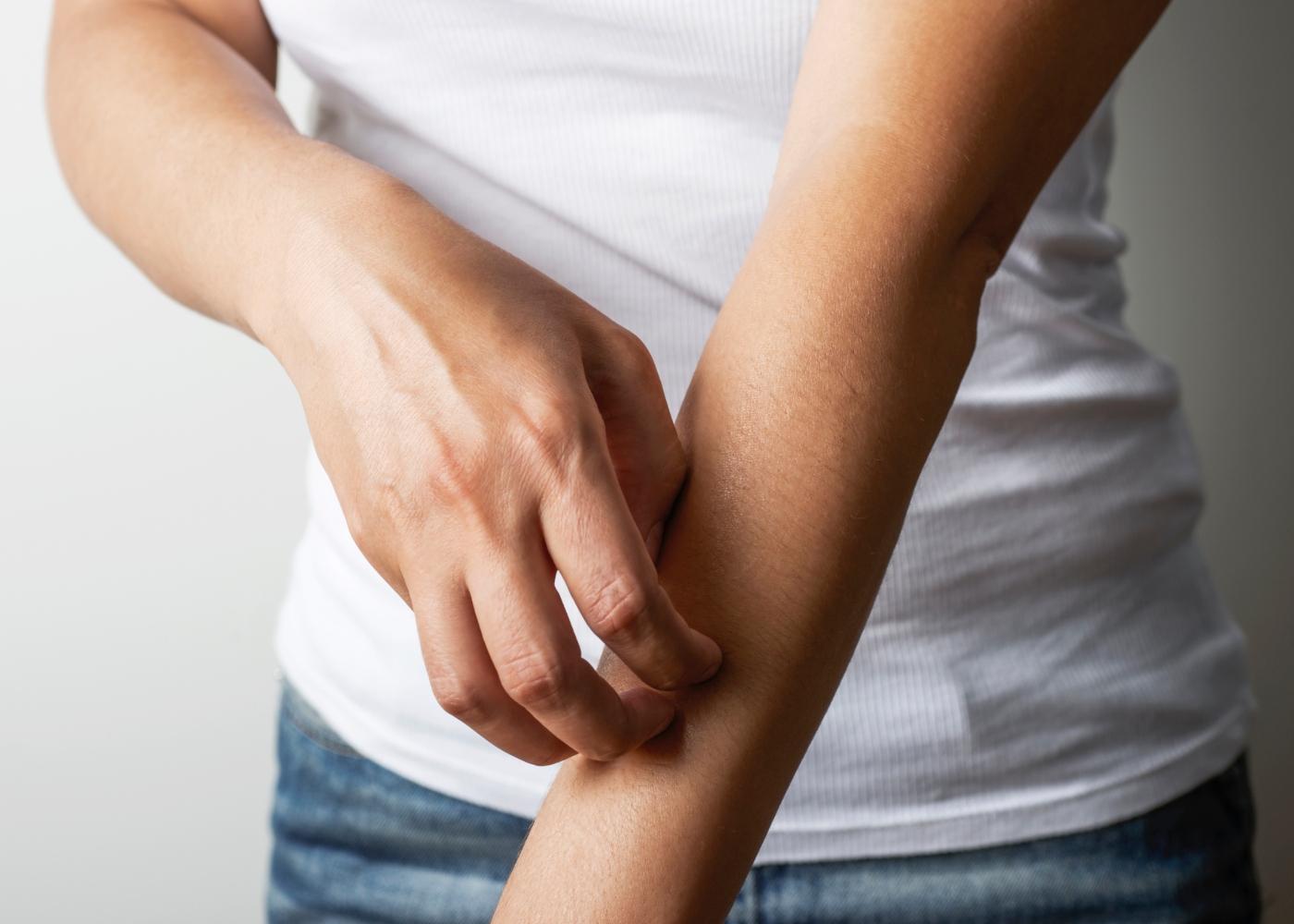 Mulher a coçar o braço por causa de mordida de mosquito
