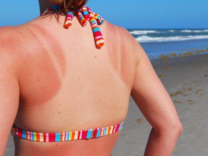 Mulher com escaldão na praia