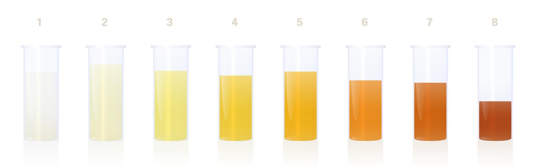 Amostras de cor de urina
