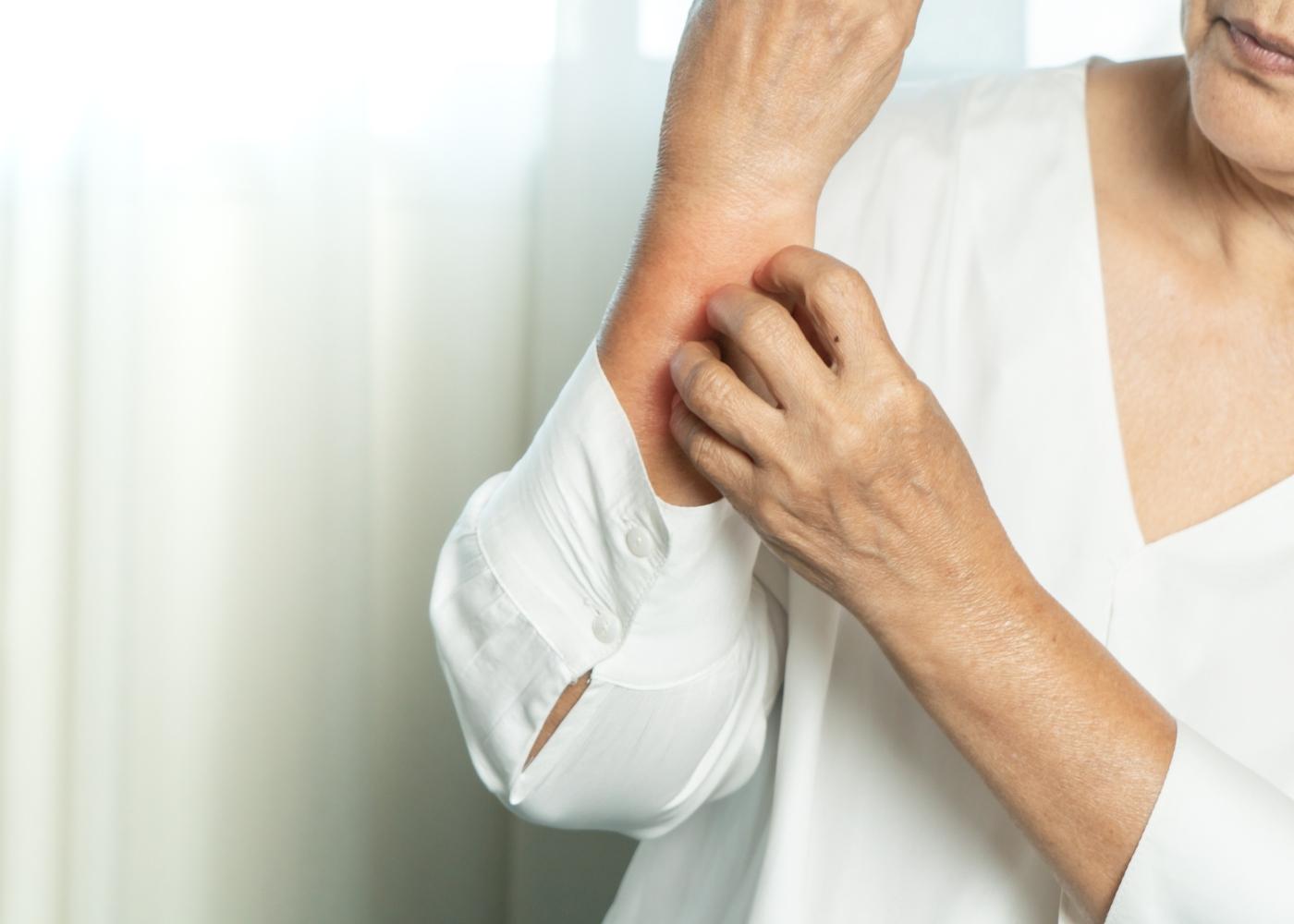 prurido no braço