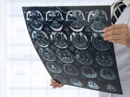 Médico a analisar resultados de exame ao cérebro