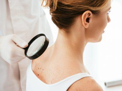 Prevenir o cancro da pele: dermatologista a analisar sinais na pele de paciente