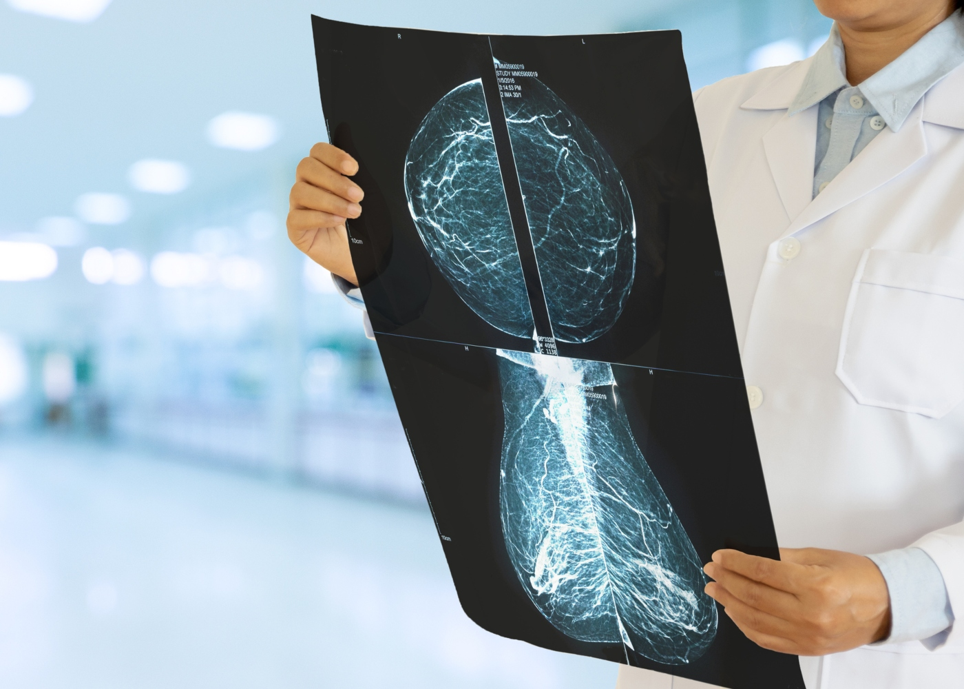 Médico a avaliar resultados de mamografia