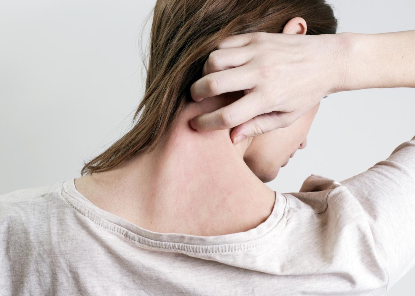 Mulher com prurido no pescoço