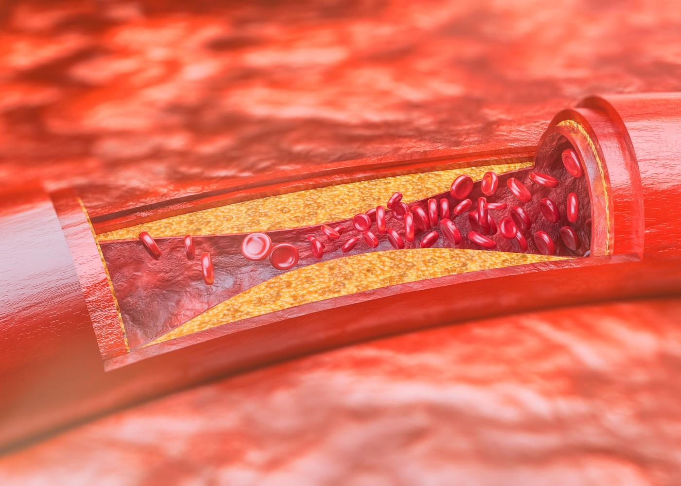Ilustração de artéria com aterosclerose